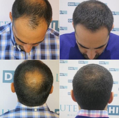 Direct-Hair-Implantation(DHI)-Doğrudan-Sas-Ekimi-oncesi-sonrasi-resimleri