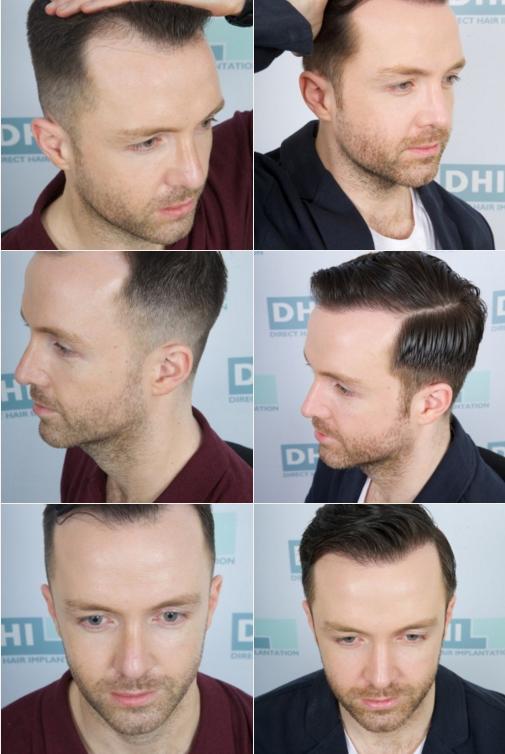 Direct-Hair-Implantation(DHI)-Doğrudan-Sas-Ekimi-oncesi-sonrasi-resimleri2