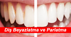 Parlak Göz Alıcı Güzel Dişler İçin Yapılması Gerekenler