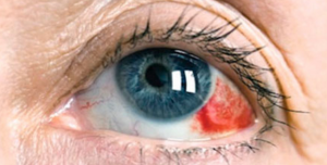 Göz Tansiyonu Belirtileri Nedir? Tedavi ve Değerleri Ne Olmalıdır