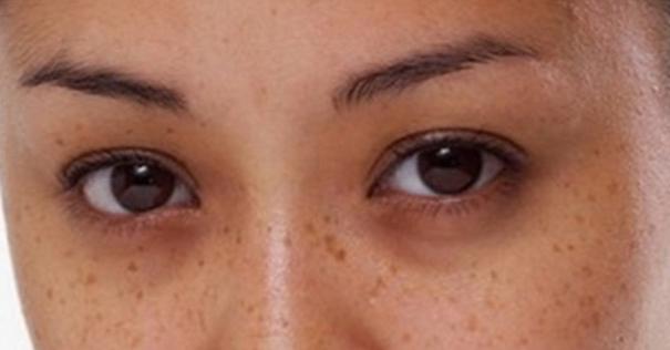 Göz Altı Torbalarına Evde Basit ve En Etkili Bitkisel Maskeler