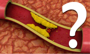 Kolesterol Seviyesini Düşüren Sağlıklı Beslenme Önerileri