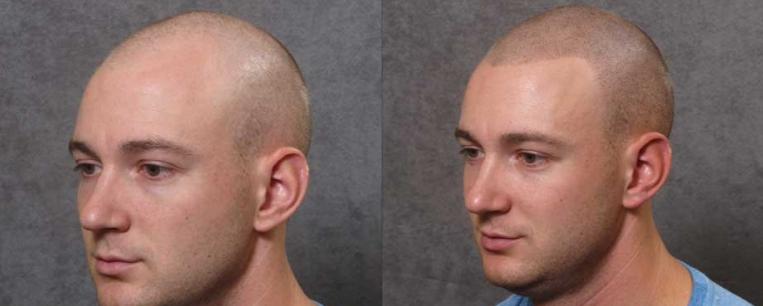 sac-dovmesi--sac-simulasyonu-Hair-Pigmentation7