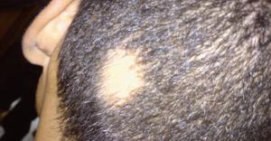 Saçkıran Tedavisi,En İyi Saçkıran İlaçları, Saçkıran Neden Olur?