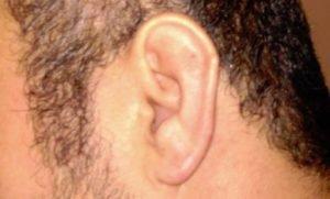 Orta Kulak İltihabı Belirtileri ,Hızlı Tedavisi ve Doktor Tavsiyesi İlaçlar
