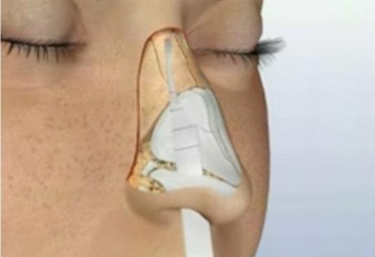 burun-torpulama-ameliyati3
