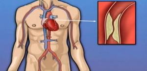 Bypass (Açık Kalp) Ameliyatı Nasıl Yapılır? Fiyatları,Riskleri ve İyileşme Süreci