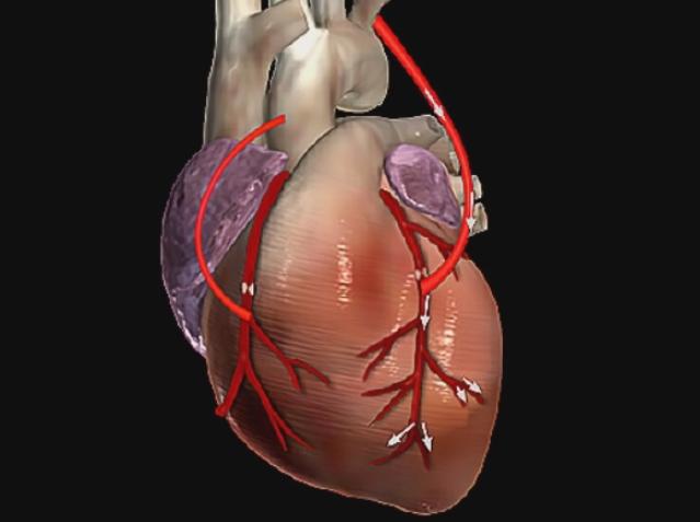bypass-acik-kalp-ameliyati-sonrasi