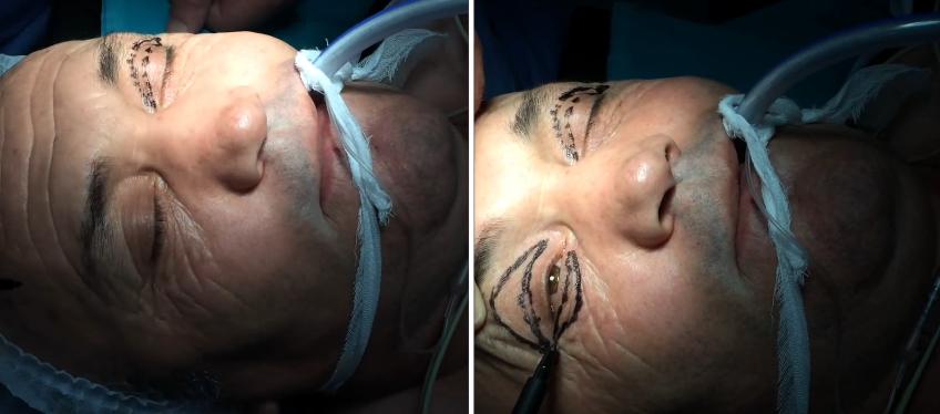 goz-kapagi-ameliyati