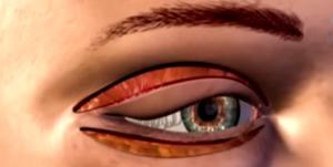 Göz Kapağı Düşüklüğü Ameliyatı Fiyatları ve Ameliyat Sonrası