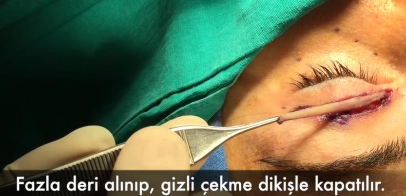 goz-kapagi-ameliyati4