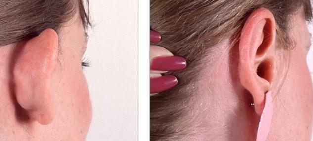 Kepçe Kulak Ameliyatı Fiyatları, Süreçleri ve Tüm Ayrıntıları