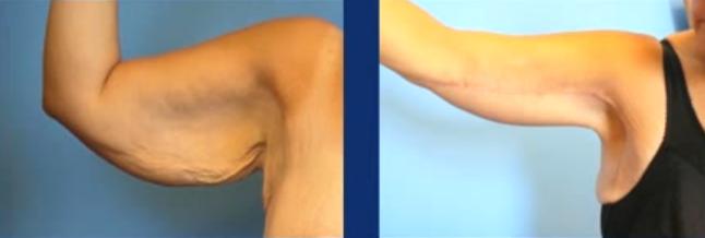 kol-gelme-ameliyati-sonuclari2