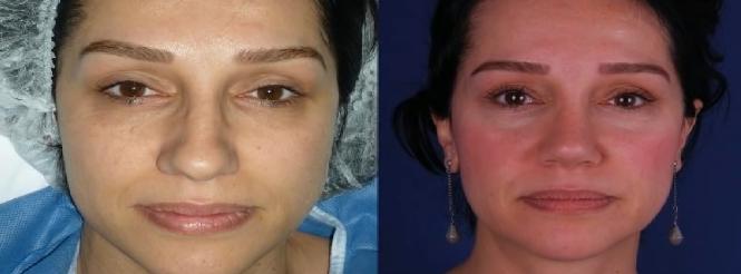 rinoplasti-sonrasi-ameliyati-sonrasi3