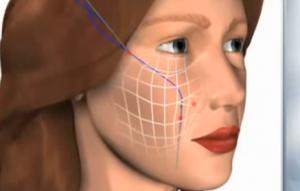 Yüz Gerdirme Ameliyatı Nasıl Yapılır? Fiyatları ve Ameliyat Sonrası
