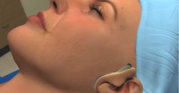 yuz-germe-ameliyati
