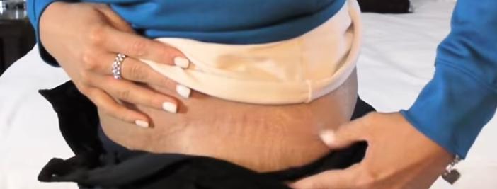 karin-germe-ameliyati4