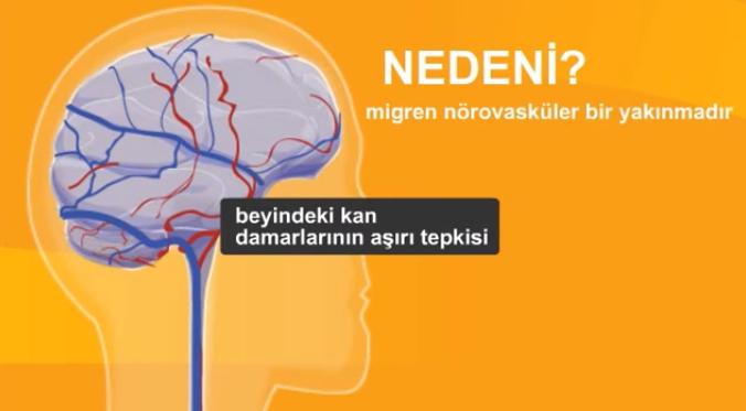 migren-asisi