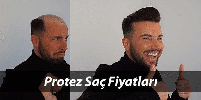 Protez Saç Fiyatları 2021 ve Protez Saç Sonrası Bakım Ücretleri