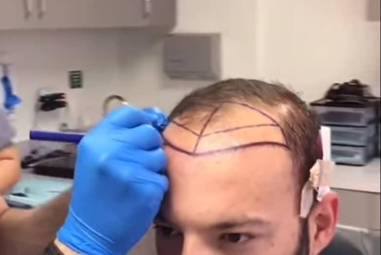 En iyi saç ekim doktorları