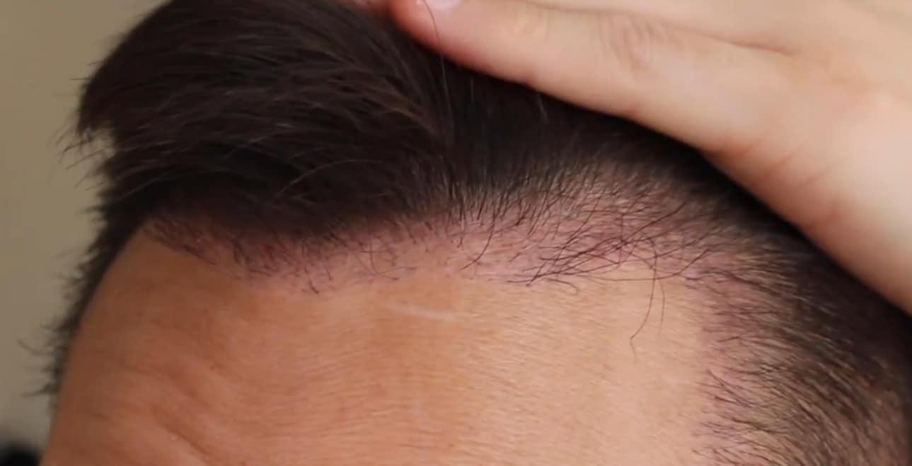 en iyi saç ekimi yapan doktorlar