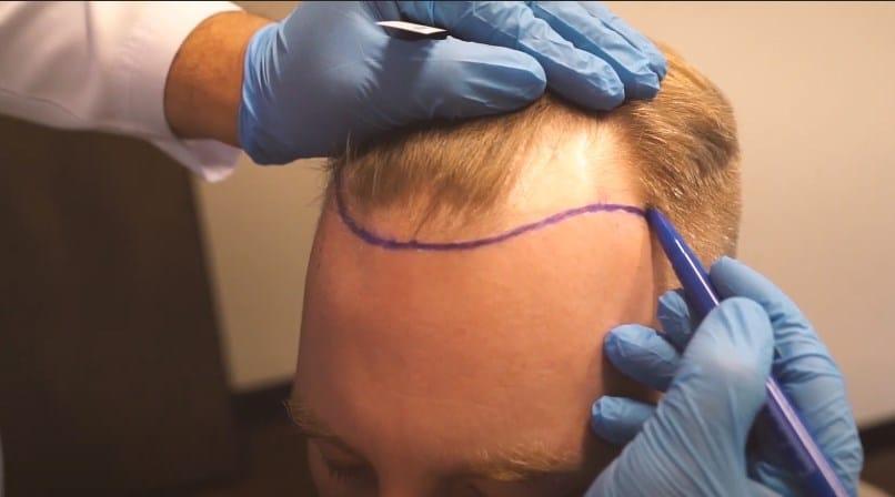 en iyi saç ekim merkezleri