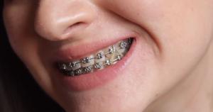 Diş Teli Fiyatları 2021 (Metal , Görünmez , Şeffaf Diş Teli ve Şeffaf Plak Çeşitleri)