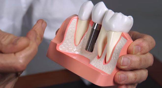 İmplant Diş Fiyatları 2020 2021 (Sgk Diş İmplantını Karşılar mı?)