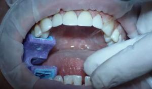 Diş Kaplama Fiyatları 2021 (Diş Kaplama Nasıl Yapılır Çeşitleri ve Hangisi daha İyi)
