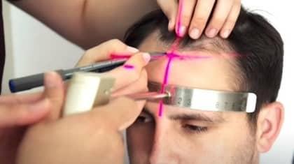 En iyi Saç Ekim Merkezleri ve Fiyatları 2021 (Güncel ve Gerçek Fiyatlar)